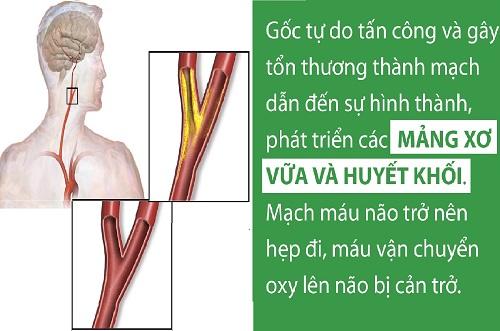 Hình ảnh Đột quỵ - Tai biến mạch máu não: Bệnh lý mạch máu não nguy hiểm nhất