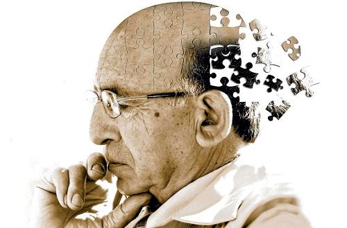 bệnh alzheimer có di truyền không