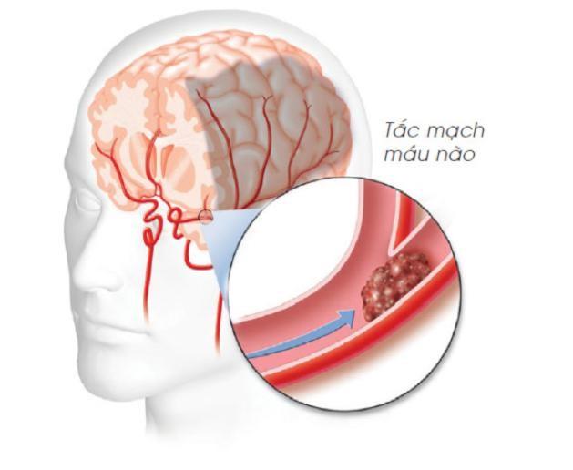 thiếu máu não