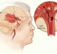 Nguyên nhân gây xuất huyết não