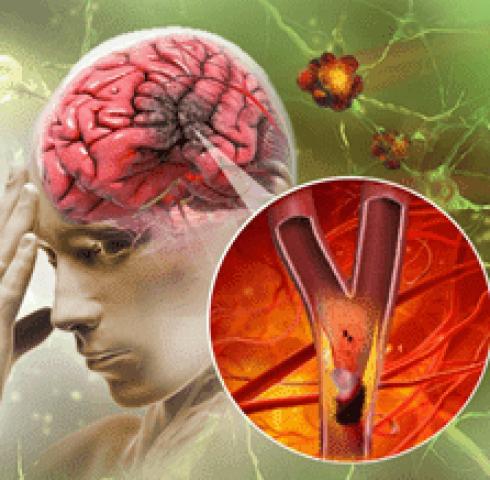 OTIV - Giảm nguy cơ, phòng ngừa đột quỵ hiệu quả