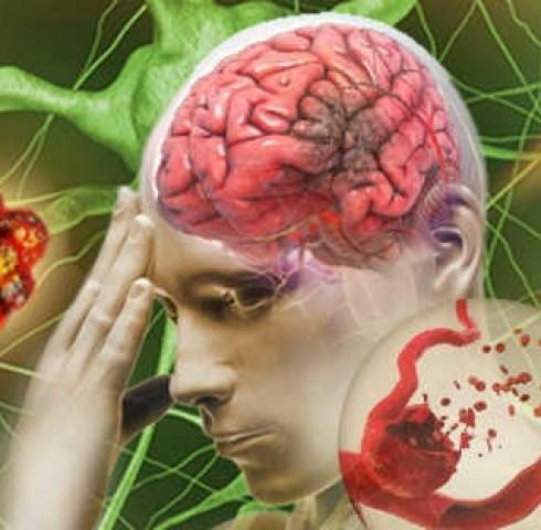 Kiểm soát đau đầu giúp dự phòng nguy cơ đột quỵ