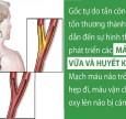 Đột quỵ và tai biến mạch máu não: tuy hai mà một