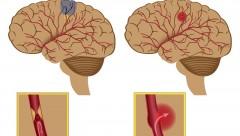Tai biến mạch máu não - Đột quỵ và giải pháp khắc phục, phòng ngừa