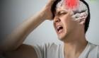 Đột quỵ: Nguyên nhân, triệu chứng, biến chứng và cách phòng ngừa