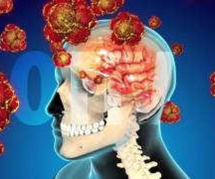 Video Giải pháp ngăn ngừa tai biến mạch máu não