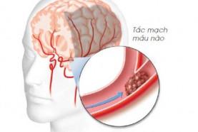 Bệnh lý mạch máu não - mối nguy từ gốc tự do
