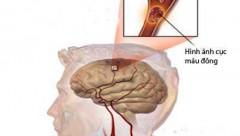 Thủ phạm gây ra chứng nhũn não