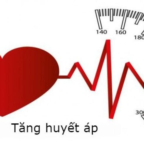 Cẩn thận với chứng đau đầu do tăng huyết áp