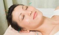 Phương pháp châm cứu hỗ trợ điều giải quyết đau đầu
