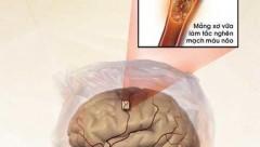 Xơ vữa động mạch 'đồng hành' với đột quỵ não