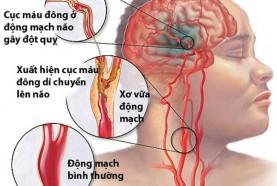 Hệ lụy sức khỏe từ gốc tự do và các căn bệnh thời đại (kỳ 1)