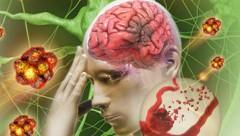 Cảnh giác với đột quỵ não