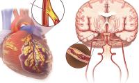 Đột quỵ có phải là cơn đau tim?