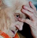 Những điều cần biết về bệnh Alzheimer và phương pháp điều trị