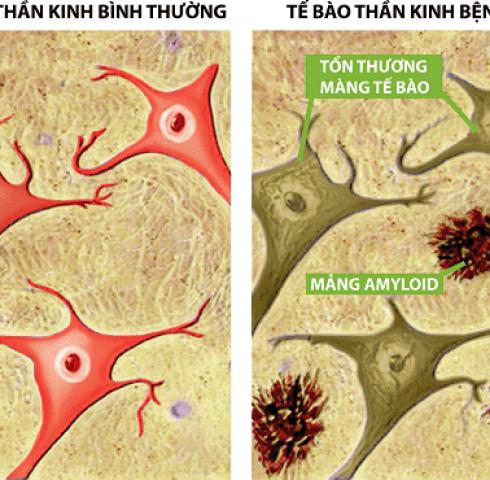 OTIV - Cải thiện hay quên, suy giảm trí nhớ hiệu quả