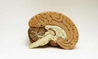Triệu chứng cảnh báo bệnh teo não không thể bỏ qua