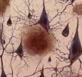 Teo tiểu não - nguyên nhân và cách phòng trị