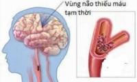 Cơn đột quỵ não thoáng qua: chủ quan một lần, nguy hại suốt đời
