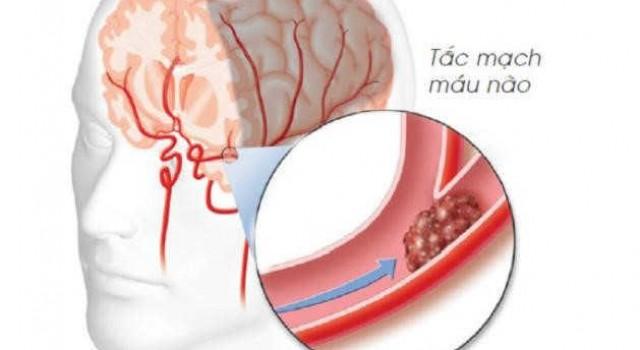 OTiV - Cải thiện thiếu máu não hiệu quả